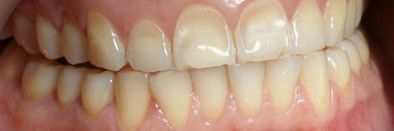 Эрозия зубов: что это такое и как лечить?