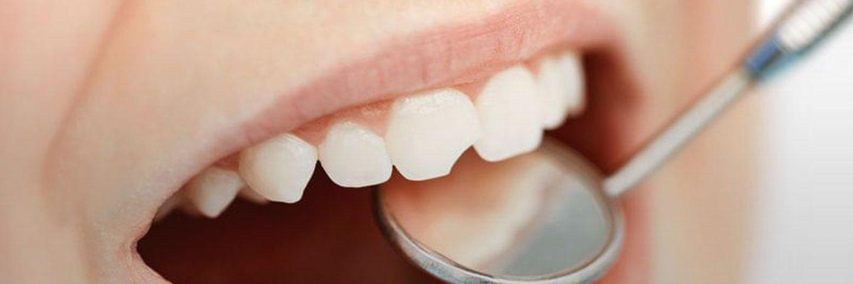 Почему возникают сколы зубов и как от них избавиться?