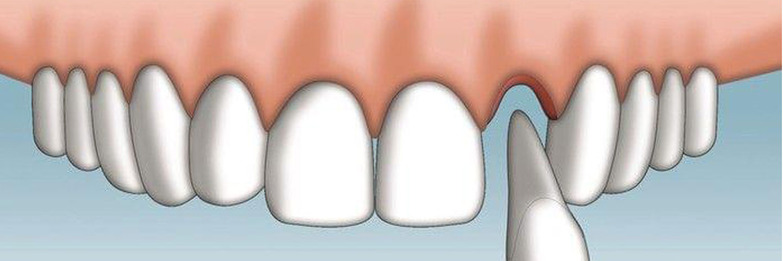 Что такое реплантация зуба